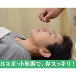 鼻づまりには「鼻はり」:イメージ