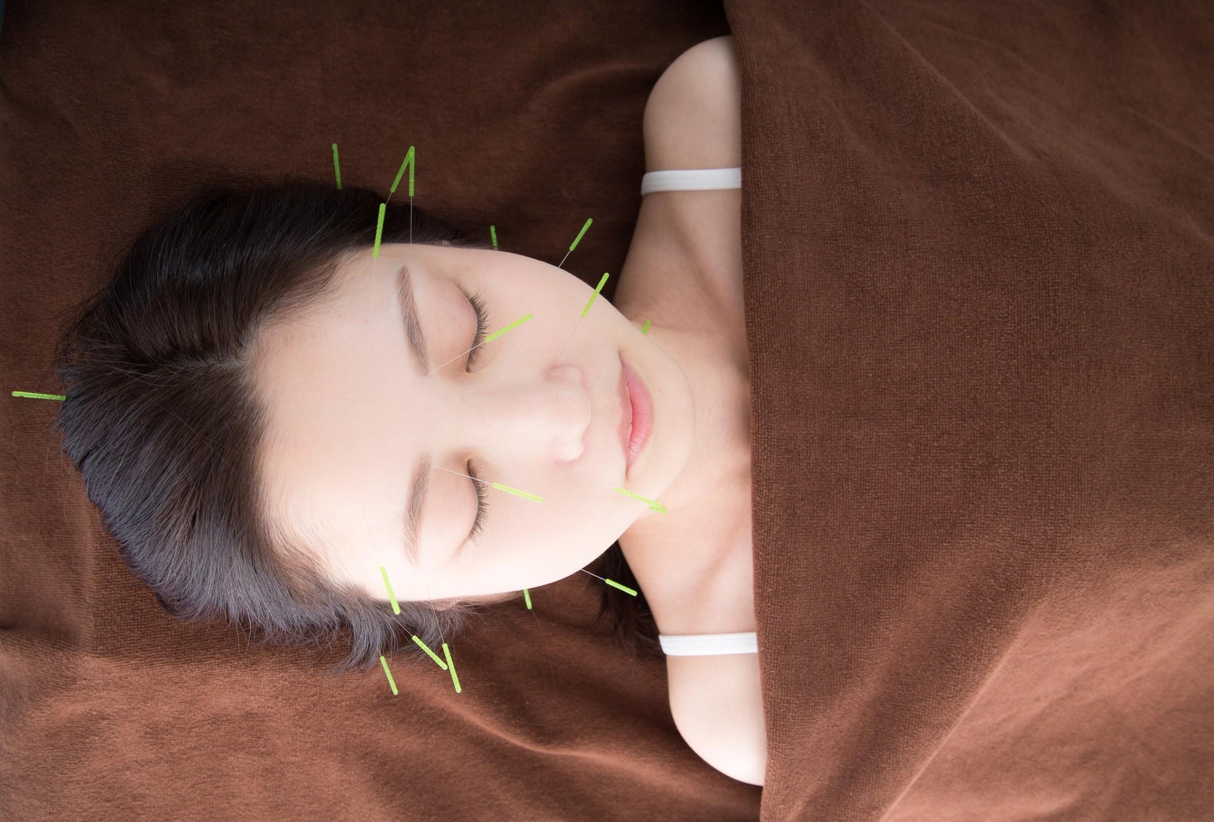 美肌美人に  美肌コース ハリ15本+マイクロカレント:イメージ